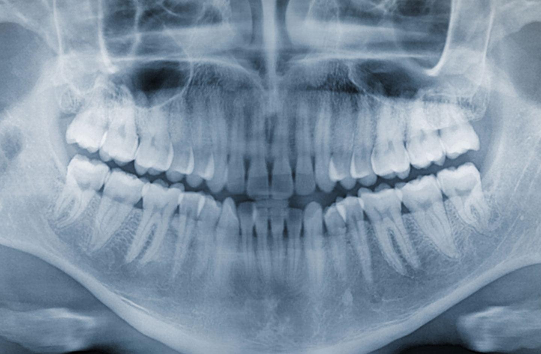 Wisdom teeth guide