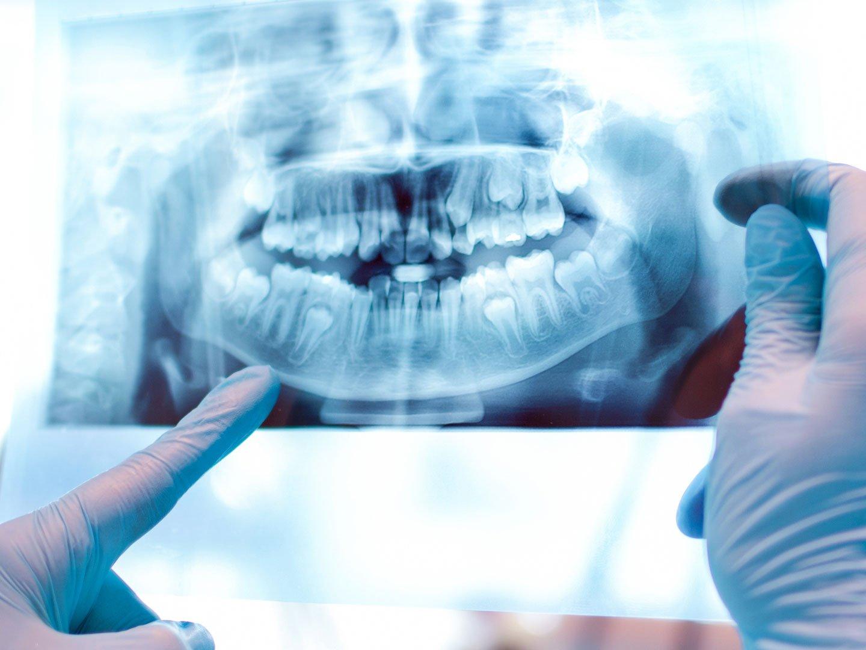 oral surgary